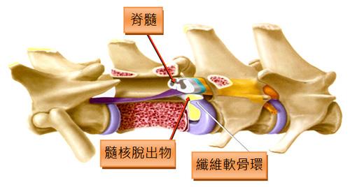 第一型椎間盤脫出示意圖。