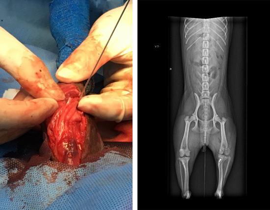 左圖為脛骨粗隆移位術,右圖為術後X光。