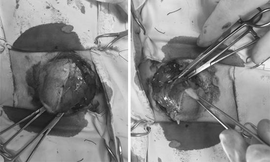 台南啄木鳥動物醫院為罹患乳腺瘤的天竺鼠進行腫瘤切除與病理組織切片。