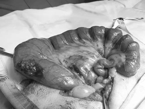 貓咪便秘造成結腸擴大,嚴重者須透過手術摘除部分結腸來排除大便。