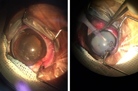 寵物眼科治療方法就是用『人工水晶體』取代白化的水晶體。