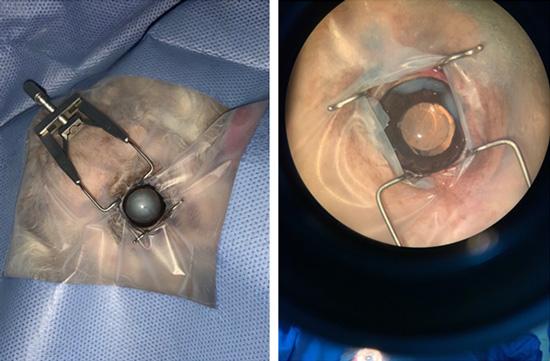 面對成熟期的白內障,寵物眼科手術須置換『人工水晶體』。